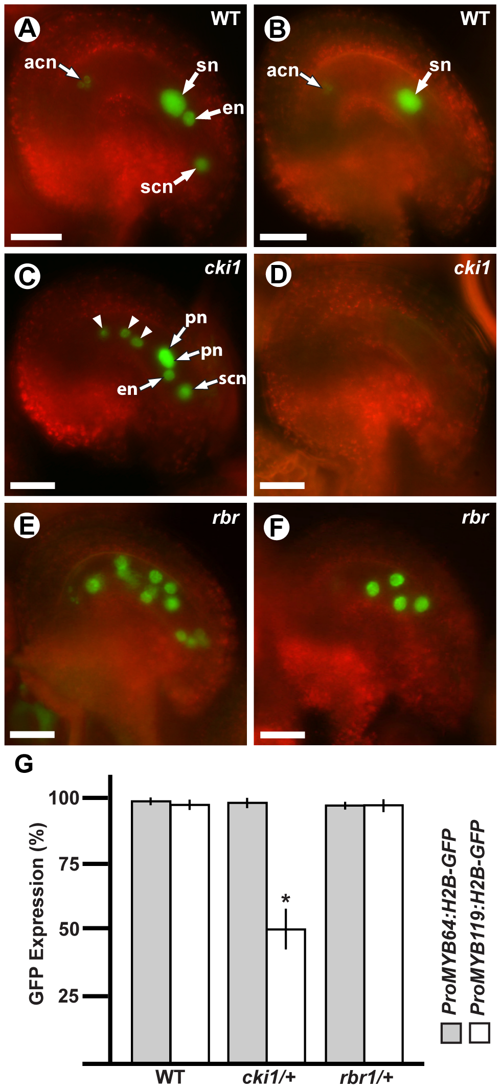 <i>MYB119</i> is downregulated in <i>cki1</i> gametophytes.