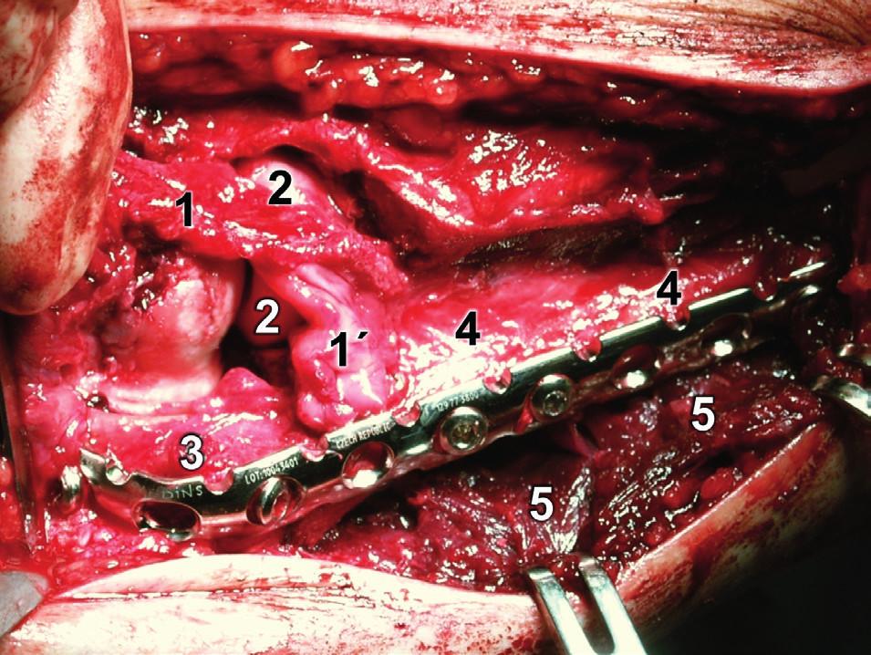 Rozšířený modifikovaný Kocherův přístup – situace po dokončení osteosyntézy (srovnej s Obr. 18): 1 – lig. collaterale lat., 1´– lig. collaterale lat. ulnare, 2 – hlavice radia, 3 – olekranický fragment ulny, 4 – diafyzární fragment ulny, 5 – m. flexor carpi ulnaris. Fig. 19: Extended modified Kocher approach – after completion of internal fixation (compare with Fig. 18): 1 – lateral collateral ligament, 1´ – lateral ulnar collateral ligament, 2 – radial head,  3 – olecranon fragment of ulna, 4 – diaphyseal fragment of ulna, 5 – flexor carpi ulnaris.
