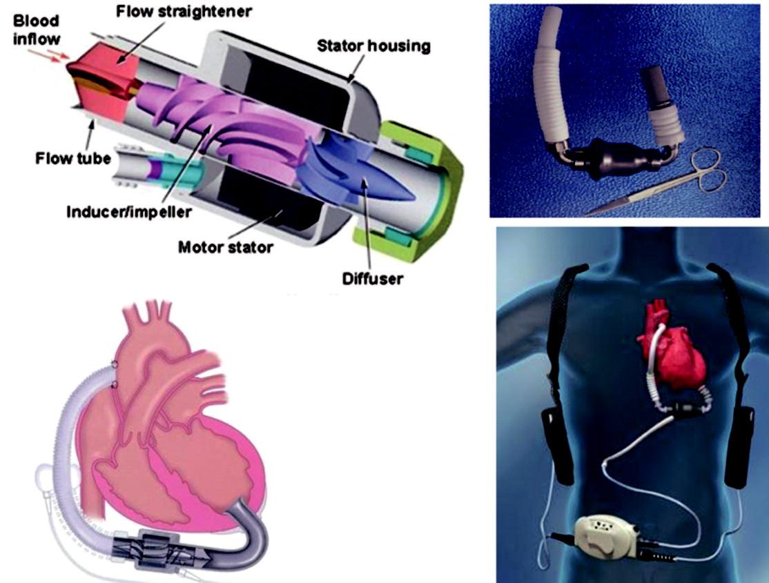 Implantovatelné mechanické podpory s kontinuálním průtokem Vlevo – MicroMed DeBakey VAD; vpravo – systém Thoratec-HeartMate II