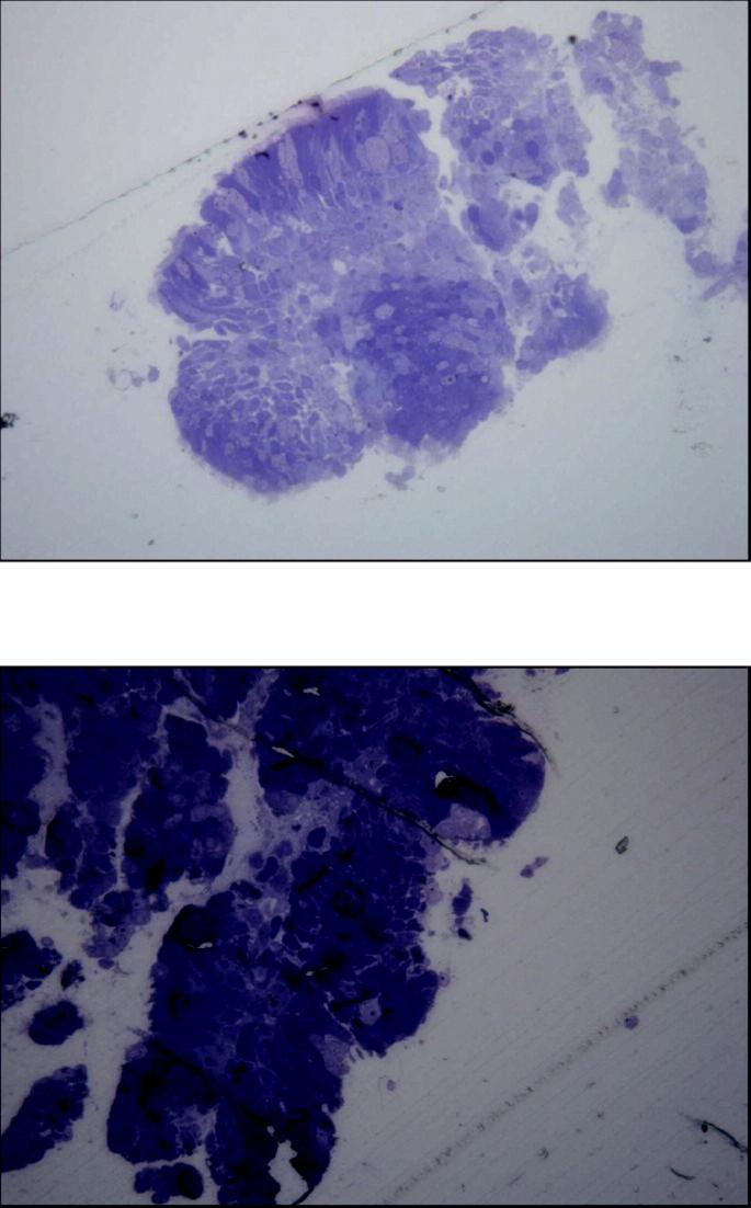 Řasinkový epitel a zmnožené pohárkové buňky u nemocného s lehčím stádiem CHOPN (A) a těžké destrukční změny povrchu řasinkového epitelu pacienta s těžkým stupněm onemocnění (B) (archiv autorů)
