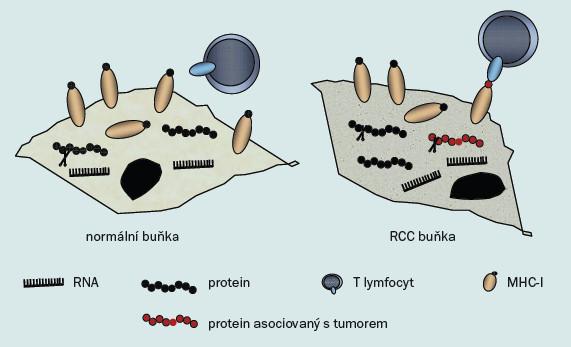 Schéma 1. Prezentace tumor-asociovaných antigenů.