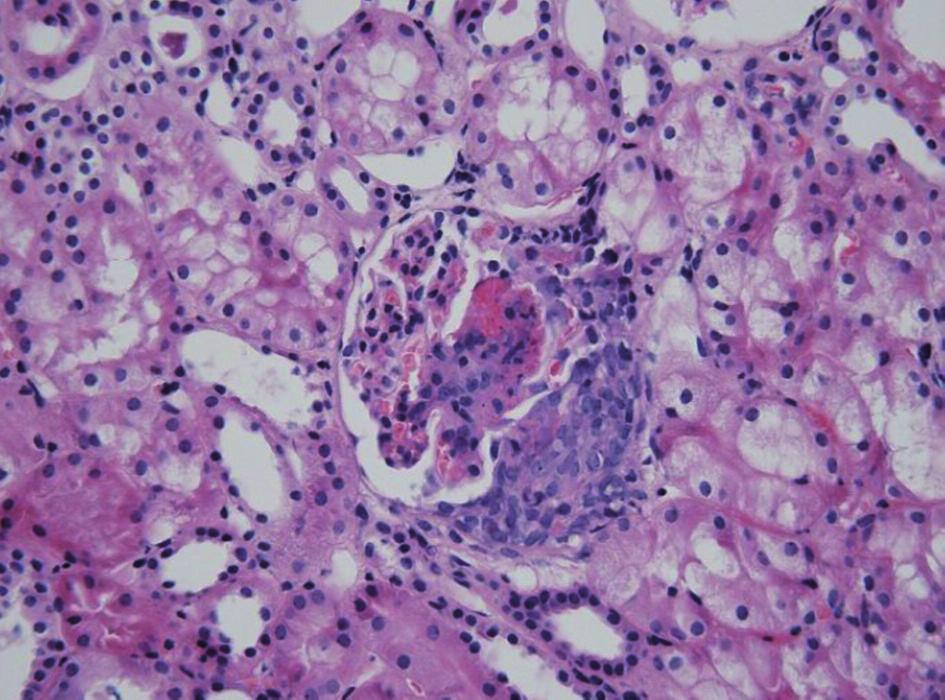 HSP nefritida. Přítomnost nekrózy a celulárního srpku v glomerulu u těžce probíhající formy HSPN. Fig. 2. HSP nephritis. Glomerular necrosis and cellular crescent in severe HSP nephritis.