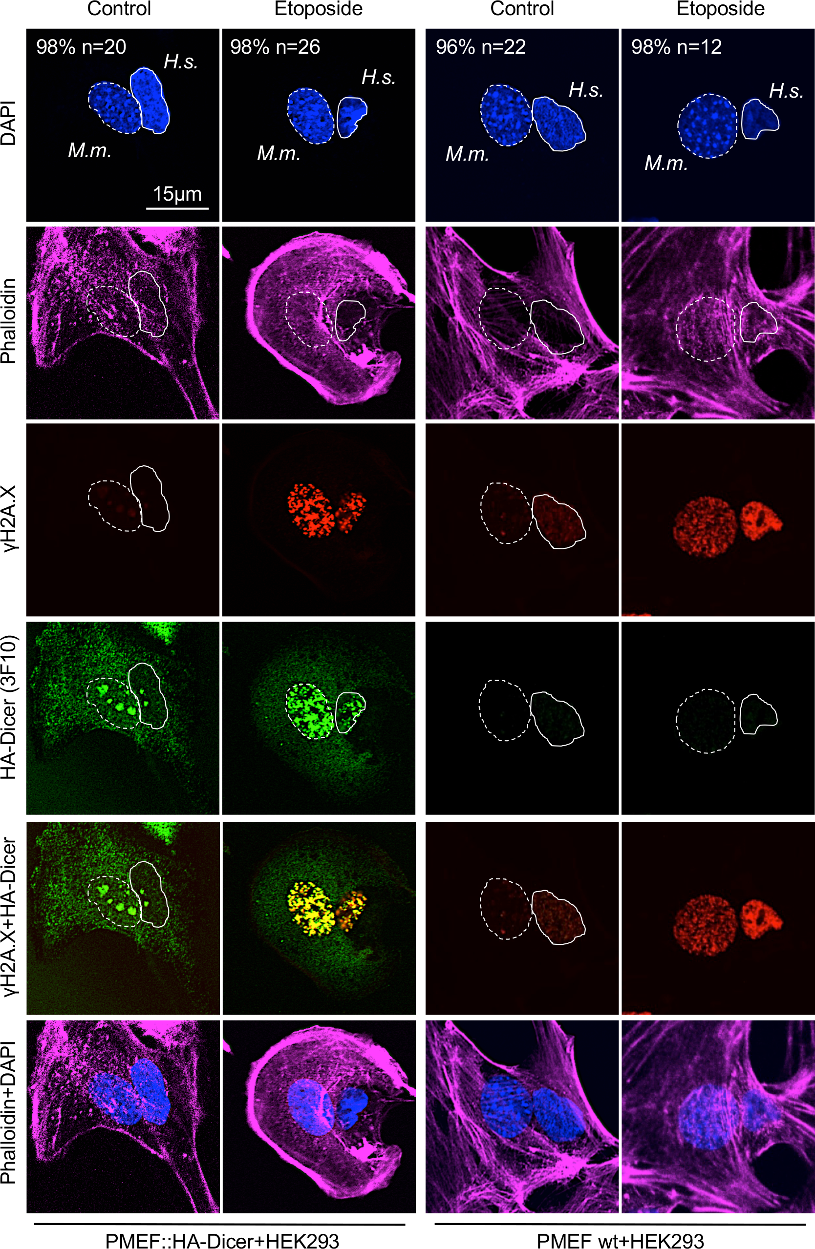 Damage-induced nuclear localisation of murine HA-Dicer in human HEK293 cells.