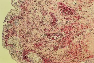 Překrvený a jemně prokrvácený polyp na povrchu krytý urotelem (barvení HE, zvětšení 25×)