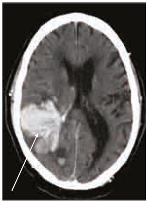 Intracerebrální krvácení (šipka) s průnikem krve do komorového systému u warfarinizovaného pacienta (INR 3,0). CT vyšetření 50 min po příhodě.