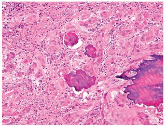 Velkobuněčný kalcifikující nádor ze Sertoliho buněk s nápadnými ložisky koncentrické a lamelární kalcifikace. Barveno hematoxylinem eozinem (zvětšení 200x).