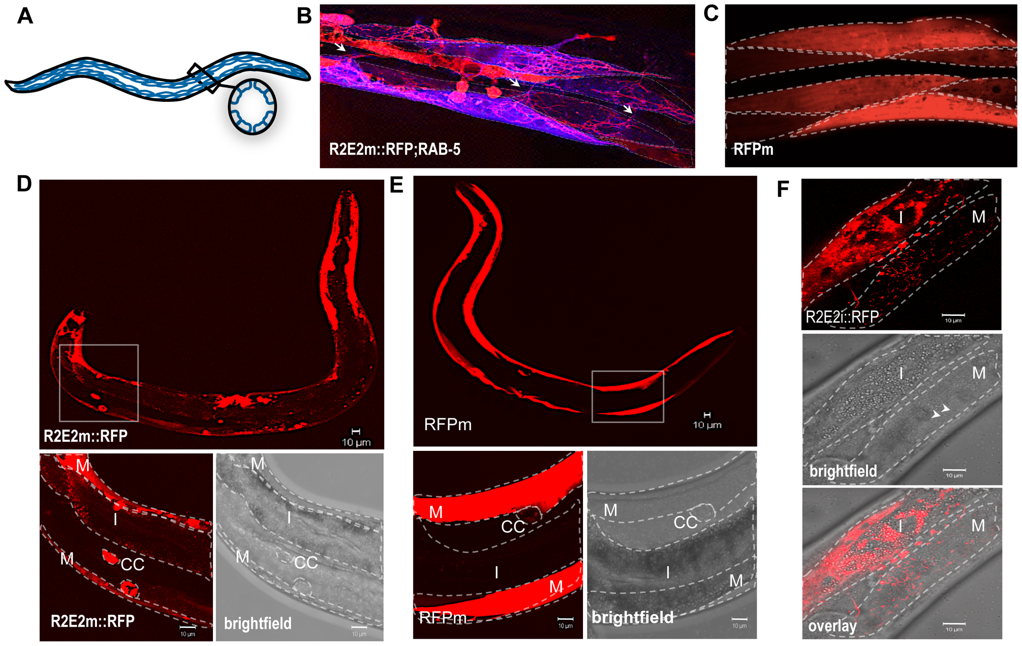 The prion domain spreads between cells and tissues in <i>C. elegans</i> by vesicular transport.
