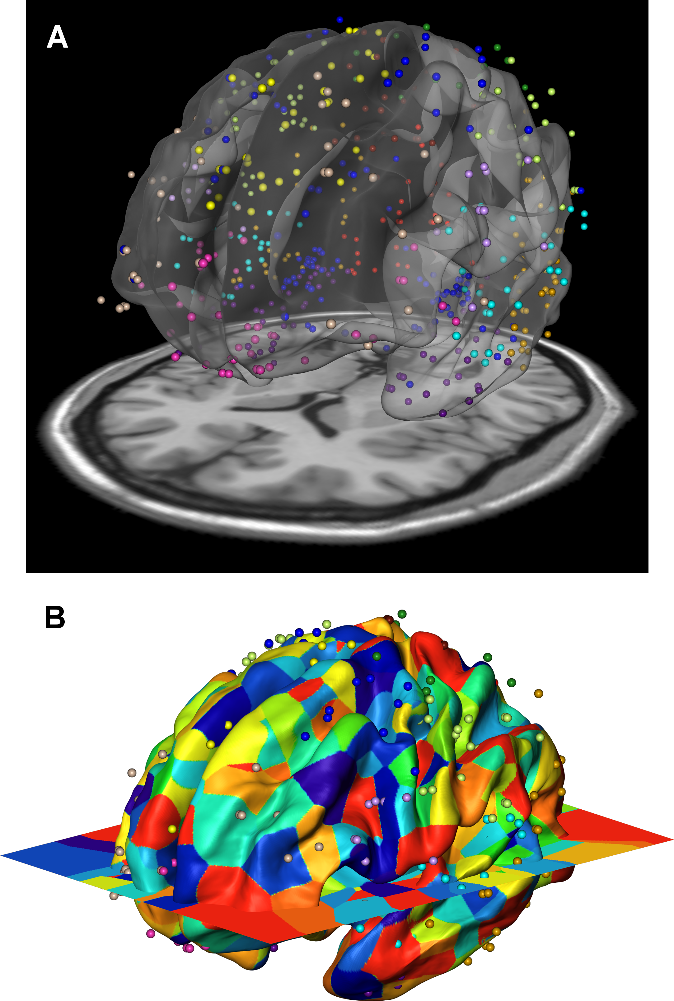 Gene expression data of the Allen Human Brain Atlas were mapped onto the 12 genetically based cortical regions in the MR space.