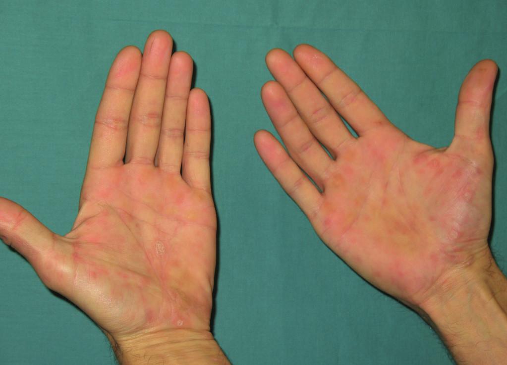 Makulopapulózní exantém ve dlaních