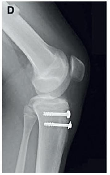 RTG snímek fixace fraktury tuberositas tibiae (17).