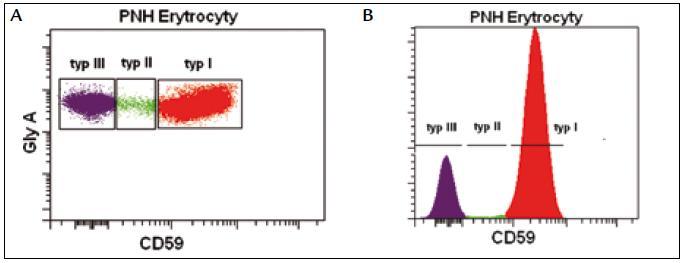 PNH erytrocyty s kompletním deficitem GPI kotveného proteinu CD59 (typ III), PNH erytrocyty s částečným deficitem (typ II) a normální erytrocyty (typ I).