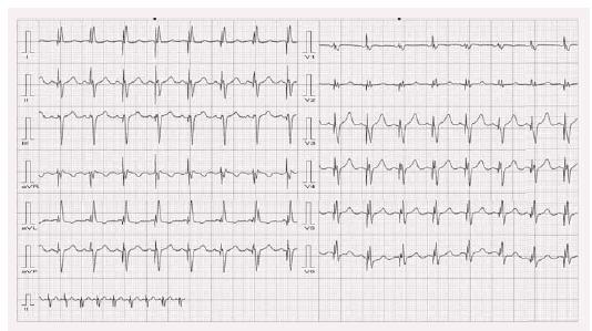 Obraz CRT stimulace u stejného pacienta jako na obr. 7.