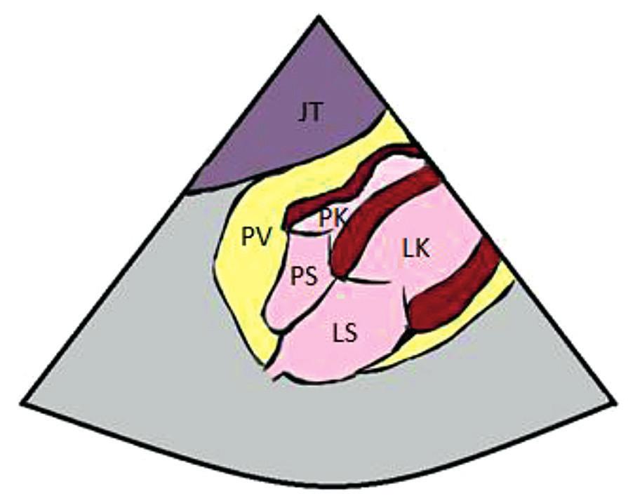 Subxifoidální projekce, kolaps pravé síně a pravé komory JT – jaterní parenchym, PV – perikardiální výpotek, PK – pravá komora, PS – pravá síň, LK – levá komora, LS – levá síň