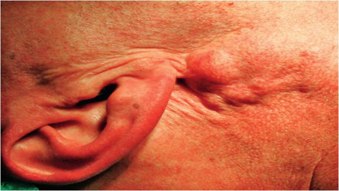 Štvrtá viacuzlová recidíva pleomorfného adenómu 25 rokov po primárnej chirurgickej liečbe.