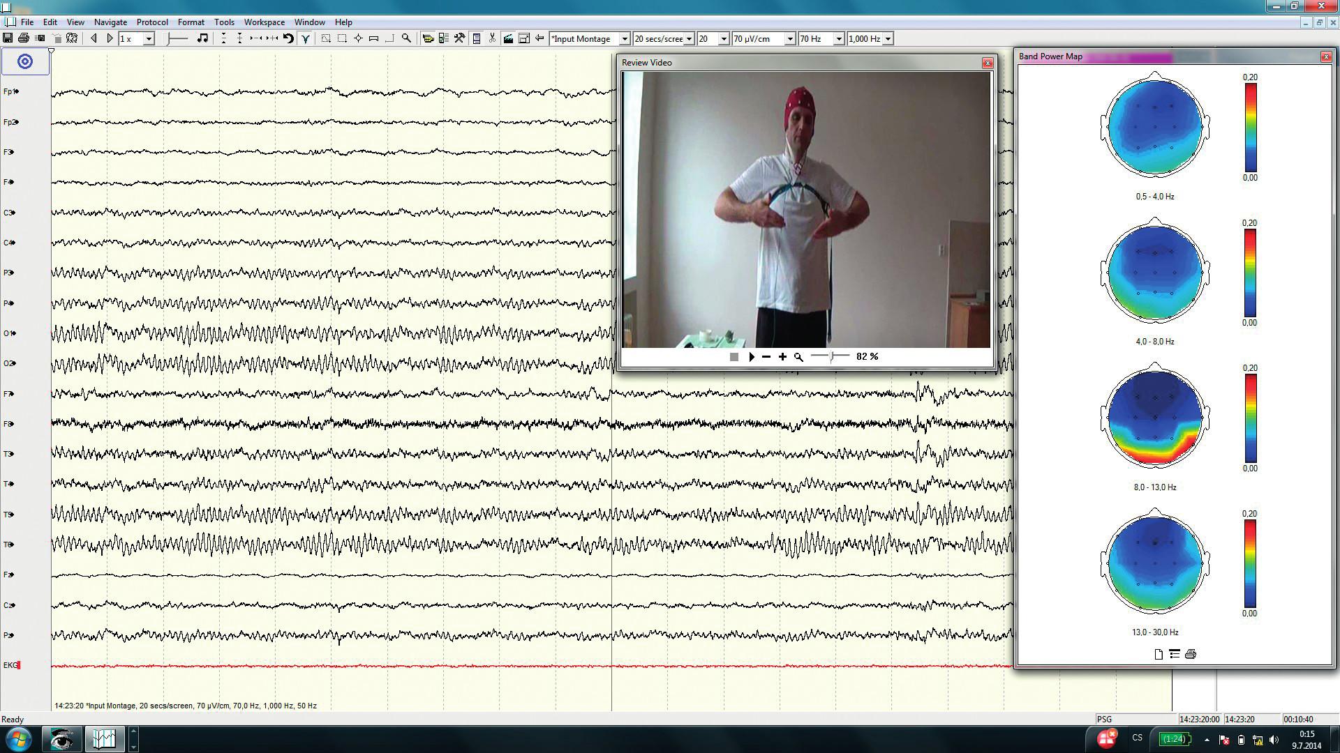 Ukázka cvičení při zavřených očích, v EEG se objevuje alfa aktivita nad zadními kvadranty. Frekvenční brain mapping zobrazuje topografické rozložení alfa aktivity v okcipitálních oblastech.