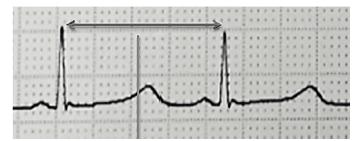 Prodloužení QT intervalu na 580 ms