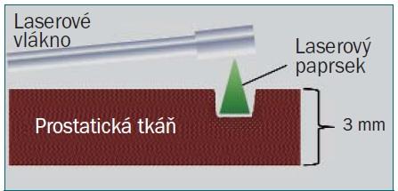 Schéma 1b. Diagram zobrazující PVP. Povrchová tkáň prostaty je rychle zahřívána energií laserového paprsku, což vede k rychlé vaporizaci prostatické tkáně.