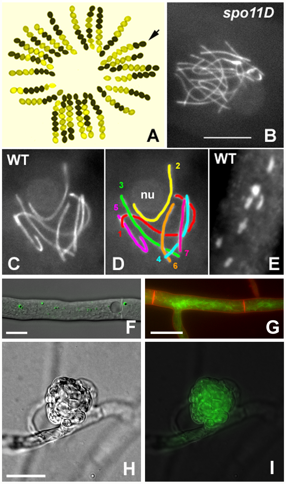 <i>S. macrospora</i> as a model organism for the analysis of meiosis and fruiting body development.