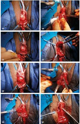 Obr. 10–17. Postup při operační korekci divertiklu močové trubice.