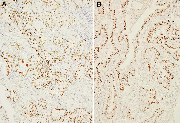 Jaderná pozitivita nádorových elementů v imunohistochemické reakci s monoklonální protilátkou proti TTF-1 ve zmrazeném materiálu peroperačního vyšetření (a) a v definitivním parafinovém materiálu formalínem fixovaného vzorku (b).  Původní zvětšení 200krát