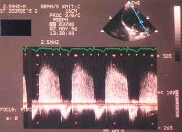 Kontinuální spektrální dopplerovská echokardiografie nabízí pohled do hemodynamiky aortální regurgitace. Rychlost regurgitačního jetu ukazuje rozdíl mezi aortálním a levokomorovým tlakem. Sklon na vrcholu spektrálního obrazu je měřítkem rychlosti, s jakou se tlakový rozdíl snižuje při poklesu aortálního a zvyšování komorového tlaku. (a) Lehká aortální regurgitace. Aortální diastolický tlak se snižuje normálně a levokomorový tlak se zvyšuje jen málo, takže během diastoly je udržována relativně velká tlaková diference. (b) Středně těžká aortální regurgitace. Sklon je prudší a poukazuje na rychlý pokles aortálního tlaku a zvyšování komorového tlaku.