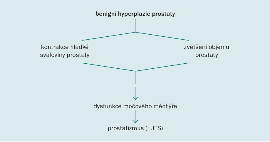 Předpokládaná patofyziologie BPH [29].