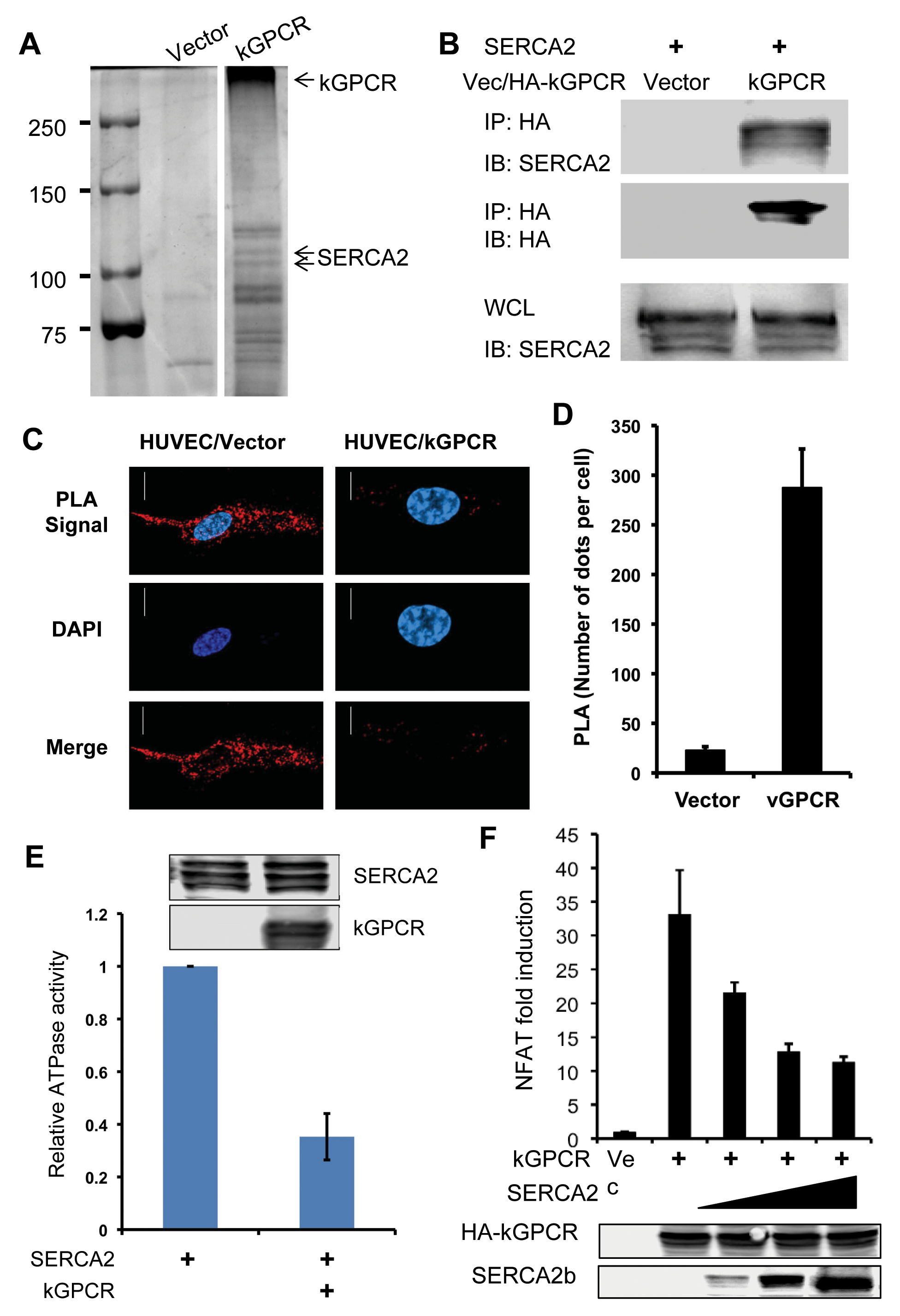 kGPCR interacts with SERCA2 and inhibits its ATPase activity.
