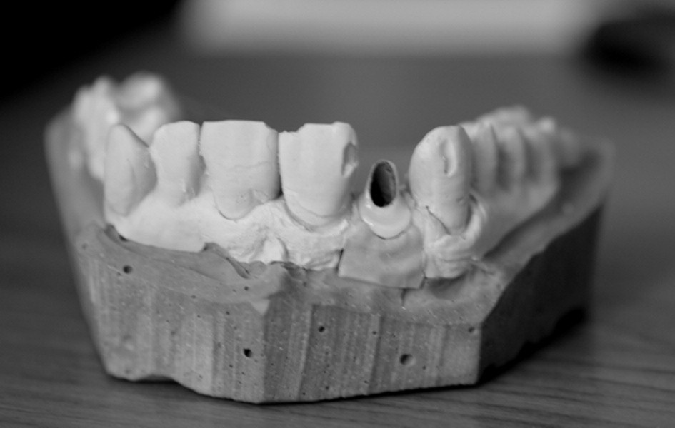 Titanokeramická nadstavba. (Foto: Eurodent medima, s.r.o.)