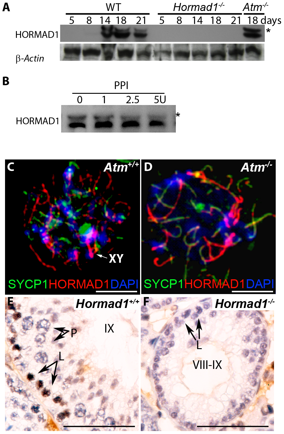 HORMAD1 phosphorylation is unaffected by <i>Atm</i> deficiency while <i>Hormad1</i> deficiency disrupts ATM autophosphorylation.