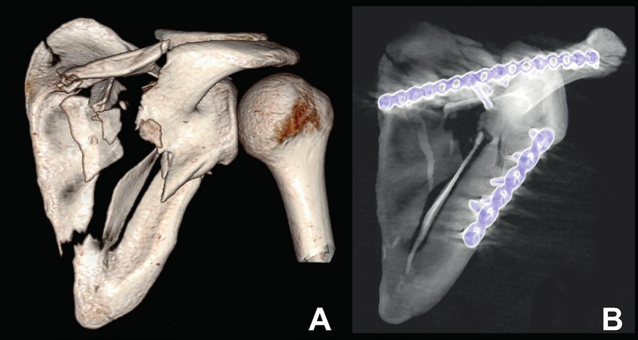 Osteosyntéza zlomeniny anatomického těla: A – situace po úrazu; B – situace po operaci. Fig. 11: Internal fixation of anatomic body: A – post-injury radiograph; B – postoperative radiograph.