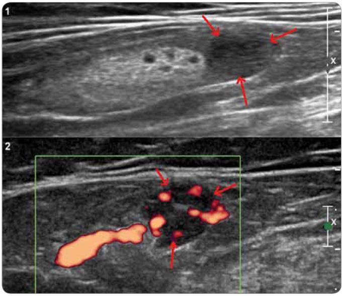 Ultrazvukové vyšetření tříselné uzliny u pacienta s plazmocelulární multicentrickou chorobou. Nativně (1) je patrná uzlina s normálním LT indexem, zachovaným hyperechogenním centrem a lokálně rozšířenou korovou vrstvou (šipky), která je při zobrazení dopplerovské energie hypervaskularizovaná (2).