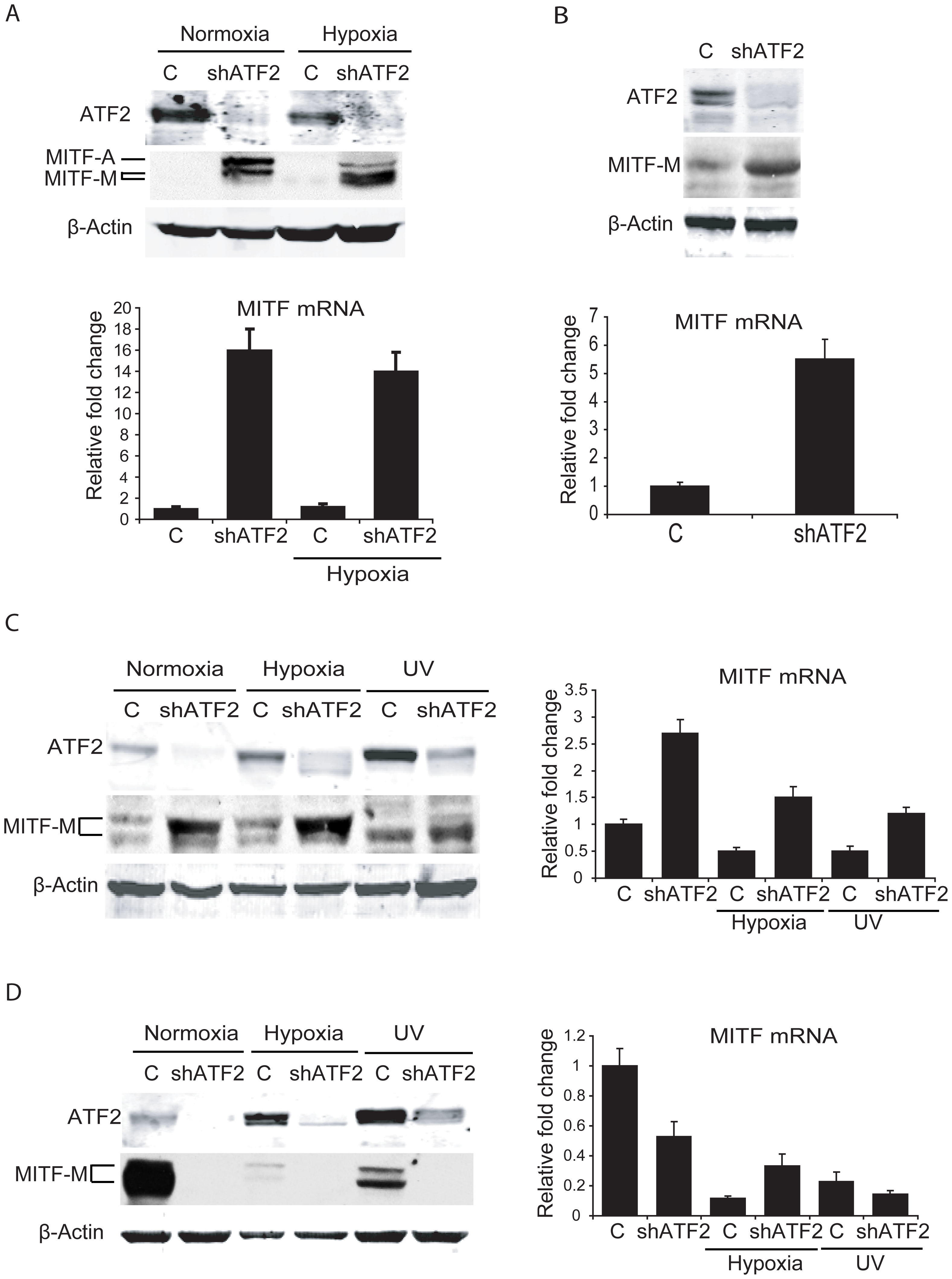 ATF2 regulates MITF in melanocytes and melanoma cells.