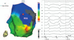 Mapování fokální komorové tachykardie z mitrálního prstence.