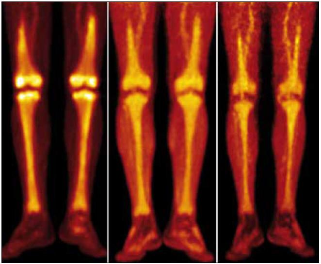 """Srovnání PET-CT akumulace fluorodeoxyglukózy při PET-CT vyšetření před léčbou, v průběhu léčby a po ukončení léčby. PET-MIP (maximum intensity projection – MIP) v barevné škále """"Hot Body"""". Studie 8/2009 vlevo, 4/2010 uprostřed, 8/2010 vpravo. Je patrný pokles metabolické aktivity ve skeletu dolních končetin, nicméně i u poslední studie je výrazně vyšší než bývá obvyklé u fyziologických nálezů."""