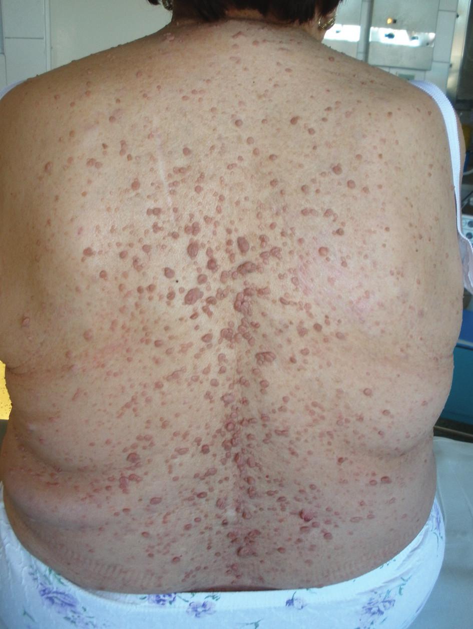 Neurofibromatóza kůže Fig. 1: Neurofibromatosis of the skin