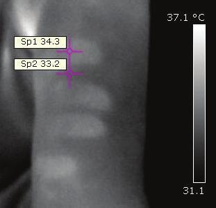Termografické znázornění povrchové teploty končetiny s otiskem ruky po předchozí manipulaci. Odražená teplota nastavená v softwaru 20 °C, emisivita 0,98.