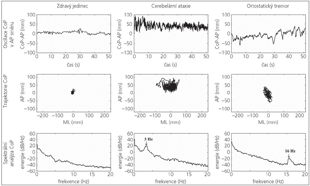 Záznam posturografického vyšetření u zdravého jedince, pacienta s cerebelární ataxií a pacienta s ortostatickým tremorem. První řada záznam polohy centre of foot pressure (CoP) v čase v antero-posteriorním (AP) směru, druhá řada záznam trajektorie CoP v antero-posteriorním (AP) a medio-laterálním (ML) směru, třetí řada spektrální (frekvenční) analýza CoP.