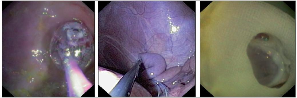 Transgastrická salpingektomie
