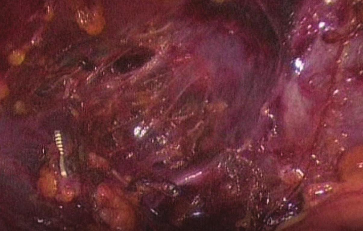 Sutura vena cava inferior Fig. 2: Suture of inferior vena cava