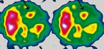SPECT dutiny hrudní, transverzální řez. Metastáza maligního melanomu v pravé srdeční komoře (hrot šipky).