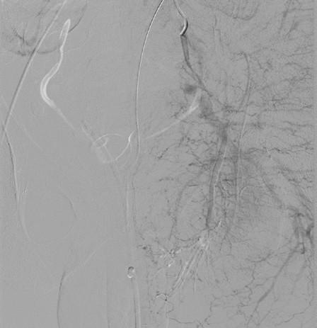 <i>Angiografie – stav po selektivní embolizaci</i> Fig. 5. <i>Angiography – after selective embolisation</i>