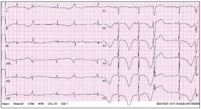 Ukázka EKG křivky od 63letého pacienta, kterému byl navzdory prodloužení intervalu QT na 530 ms za bazálních podmínek podán amiodaron v infuzích k zvládnutí epizod fibrilace síní. Je patrno extrémní prodloužení intervalu QT s bizarními vlnami T a bigeminicky vázanými komorovými extrasystolami. U tohoto pacienta došlo k rozvoji elektrické bouře na podkladě epizod torsade de pointes a situace byla zvládnuta dočasnou kardiostimulací a vysazením amiodaronu.