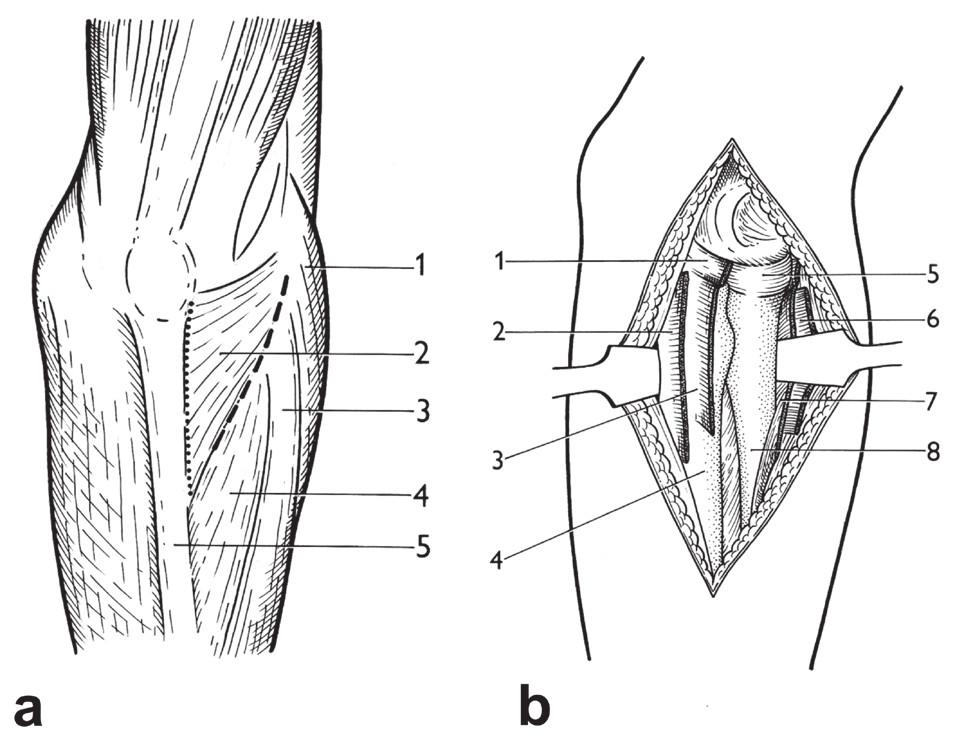 Boydův přístup: a – srovnání incize u Boydova přístupu (tečkovaně) a Kocherova přístupu (čárkovaně), 1 – picondylus lateralis humeri, 2 – m. anconeus, 3 – m. extensor digitorum, 4 – m. extensor carpi ulnaris, 5 – ulna; b – dokončený Boydův přístup: 1 – dorzální část lig. anulare radii,  2 – úpon m. anconeus na ulnu, 3 – úpon m. supinator na ulnu, 4 – diafýza ulny, 5 – caput radii,  6 – ventrálně odtažený m. anconeus, 7 – ventrálně odtažený m. supinator, 8 – diafýza radia. <i>(Převzato z Bartoníček J. Operační přístupy u zlomenin hlavičky a diafýzy rádia. Acta Chir Orthop Traumatol Cech 1988;55:497−516.)</i> Fig. 22: Boyd approach: a – comparison of incision in Boyd approach (dotted line) and Kocher approach (dashed line), 1 – lateral epicondyle of humerus, 2 – anconeus, 3 – extensor digitorum,  4 – extensor carpi ulnaris, 5 – ulna; b – completed Boyd approach: 1 – posterior part of radial annular ligament, 2 – insertion of anconeus on ulna, 3 – insertion of supinator on ulna, 4 – ulnar shaft, 5 – radial head, 6 – anteriorly retracted anconeus, 7 – anteriorly retracted supinator, 8 – radial shaft. <i>(Reprinted from Bartoníček J. [Surgical approaches in fractures of the head and shaft of radius]. Acta Chir Orthop Traumatol Cech 1988;55:497−516.)</i>
