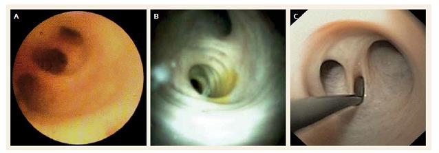 Normální žlučové cesty – A. SOC, Spyglass<sup>®</sup> Legacy, B. SOC, Spyglass™ DS, C. DPOC, transnazální endoskop. Fig. 1. Normal bile ducts – A. SOC, Spyglass<sup>®</sup> Legacy, B. SOC, Spyglass™ DS, C. DPOC, transnasal endoscope.