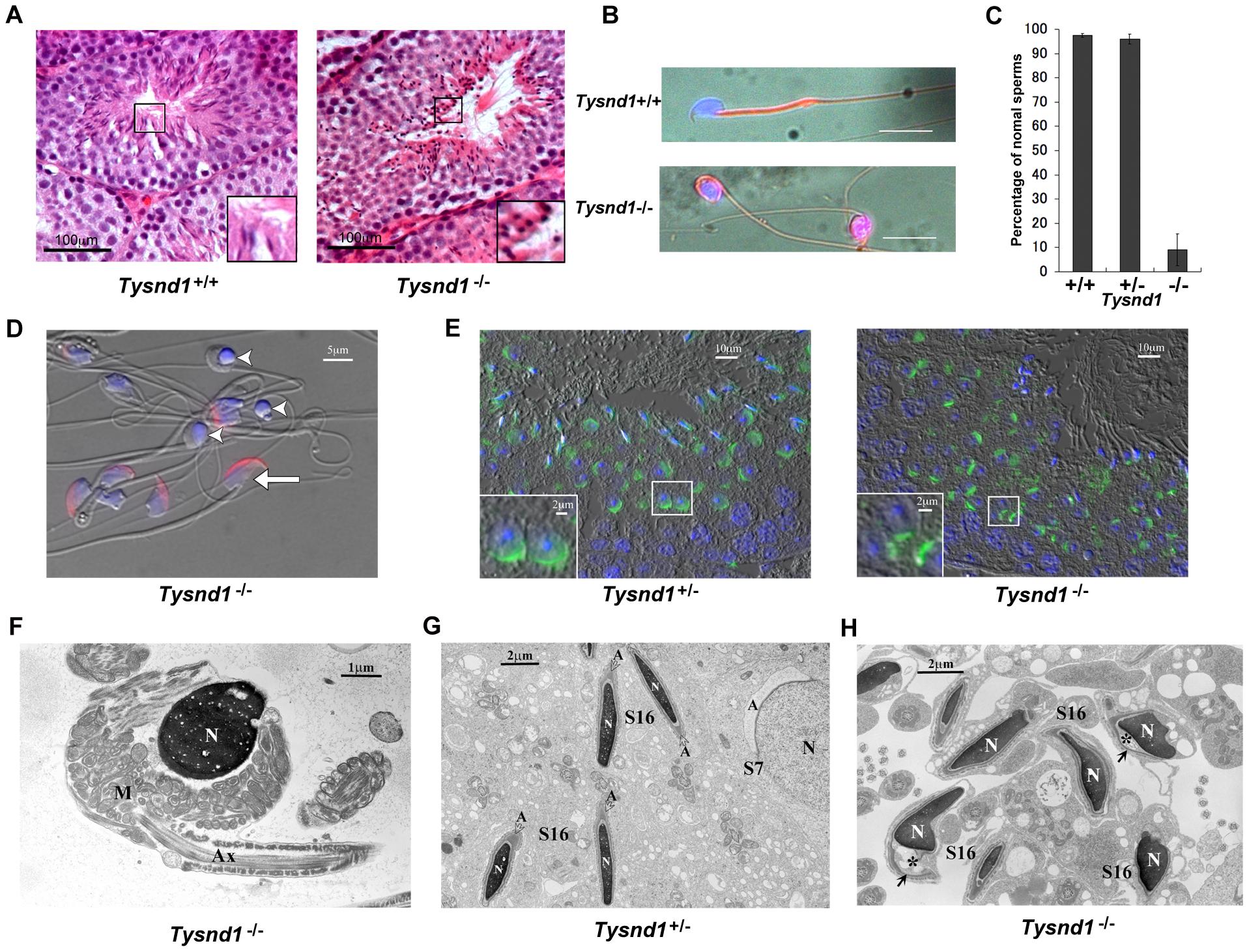 Male <i>Tysnd1</i><sup>−/−</sup> mice are infertile.