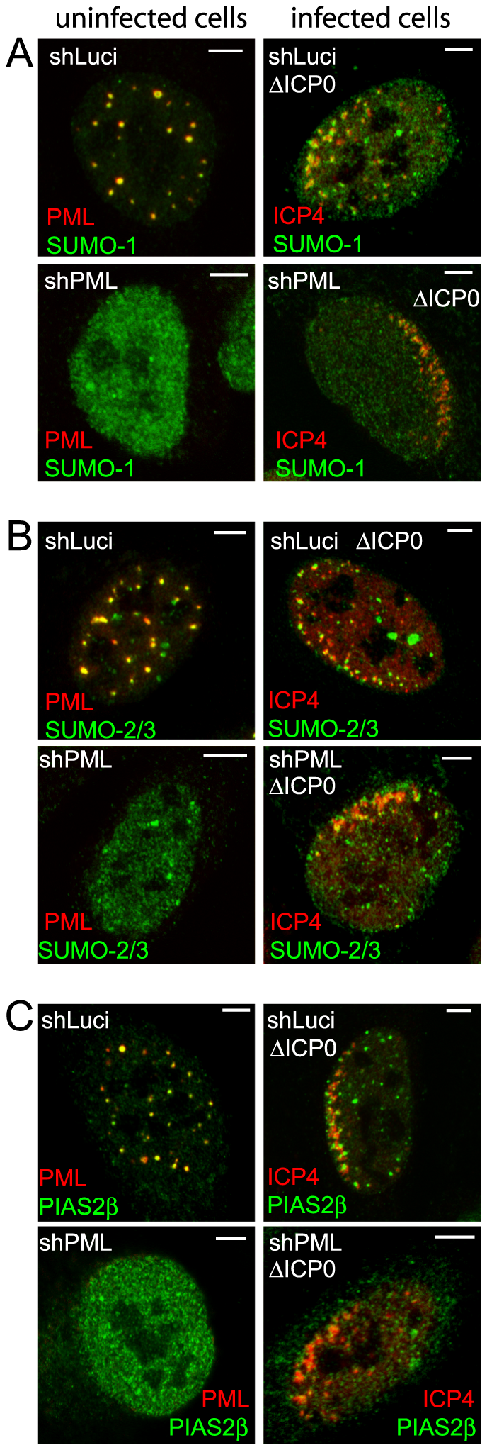 Recruitment of SUMO family members and PIAS2β to HSV-1 induced foci.