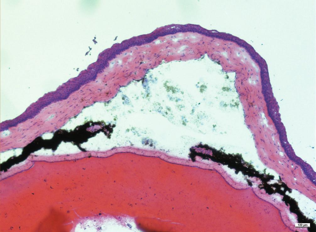 Histologický řez přední částí oka, komorová tekutina je zkalená, duhovka je překrvená, jsou přítomny přední i zadní synechie. Za duhovkou je čočka, která fyziologicky vyplňuje velkou část oka. Zvětšení 10x