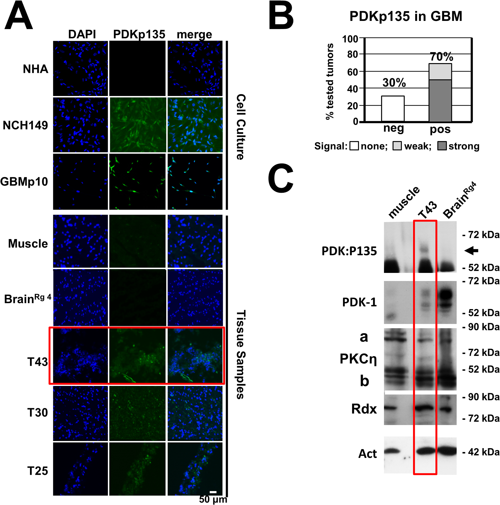 Detection of PDK1phosphoS135 in human cancer tissues.