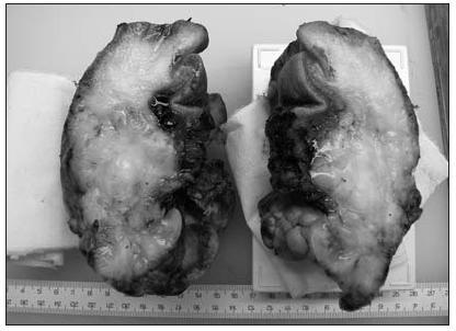 Sarkom jazyka (podélný řez resekčním materiálem)