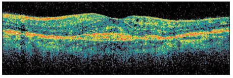OCT ľavého oka – stav po poslednej (3.) aplikácii anti- VEGF. Vymiznutie subretinálneho edému so zhrubnutím CNV svedčí pre stále pretrvávajúcu aktivitu procesu